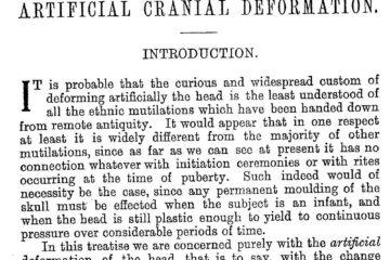 Artificial Cranial Deformation by Eric John Dingwall (1931)